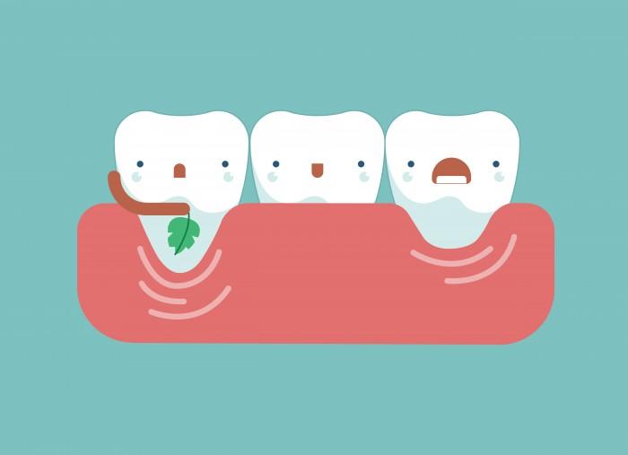 gencives dents de déchaussées