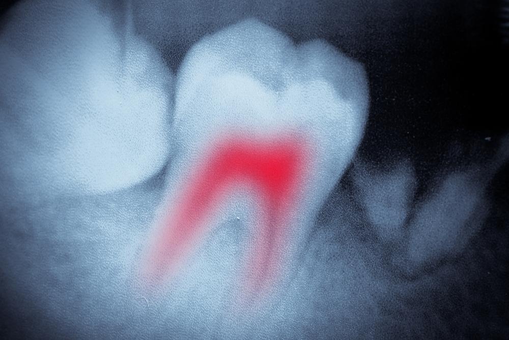 Qu'est-ce que le traitement de canal? Consultez votre dentiste à Laval