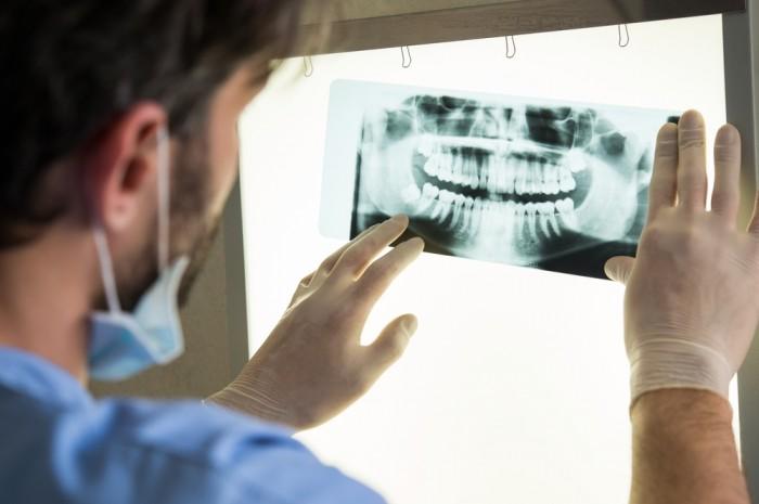 Les radiographies chez le dentiste
