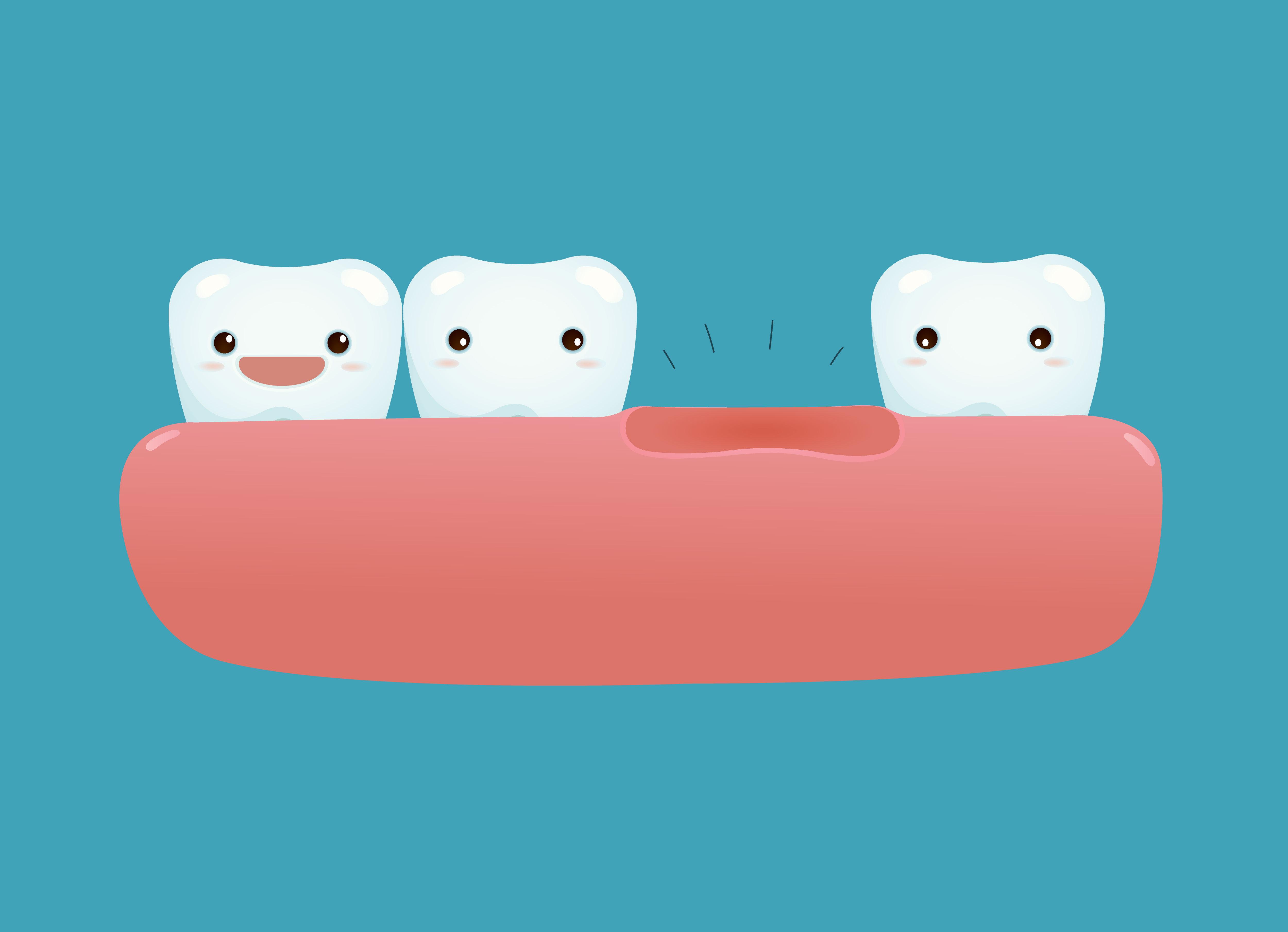 remplacer dent manquante