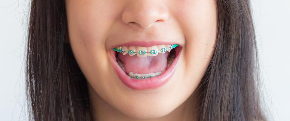 orthodontie quand consulter dentiste