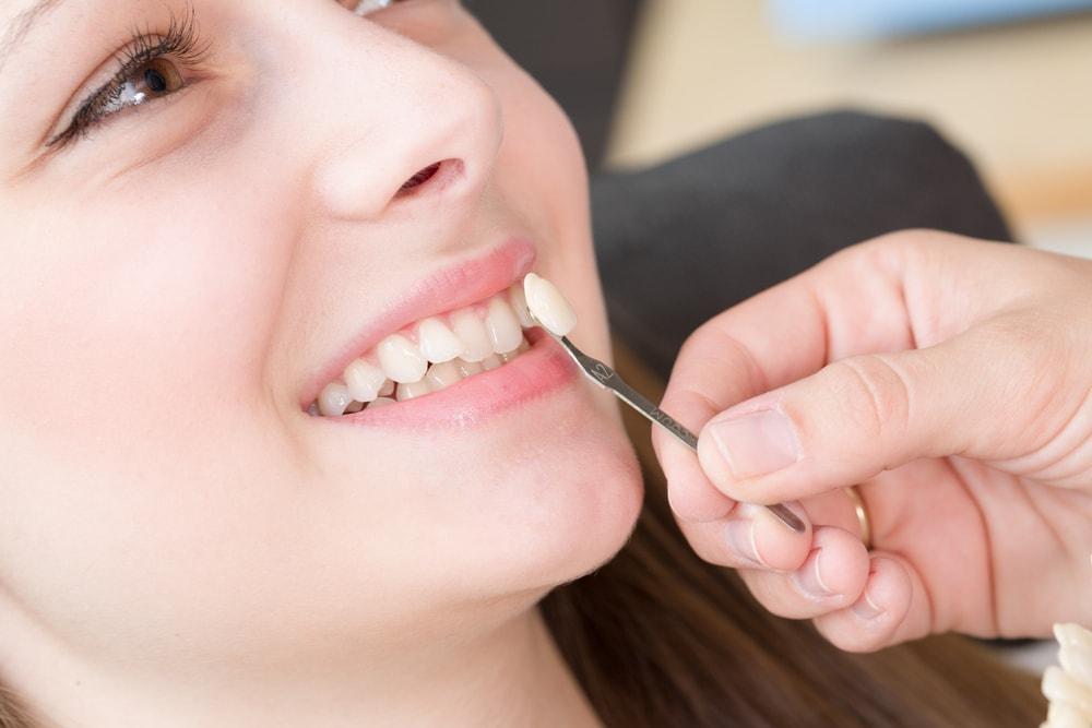 Facettes dentiste Laval
