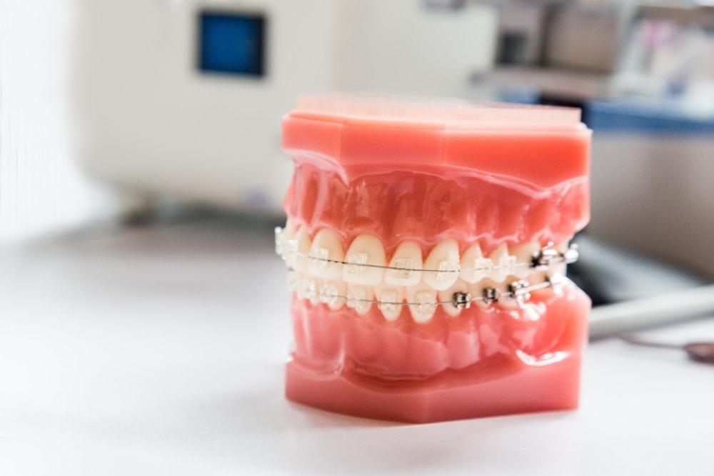 Les fausses croyances sur l'orthodontie