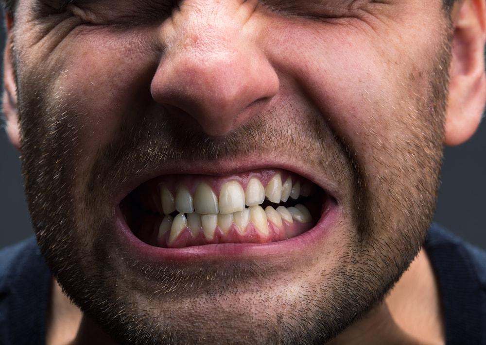 Bruxisme : l'importance de l'appareil préventif - Dentiste Laval