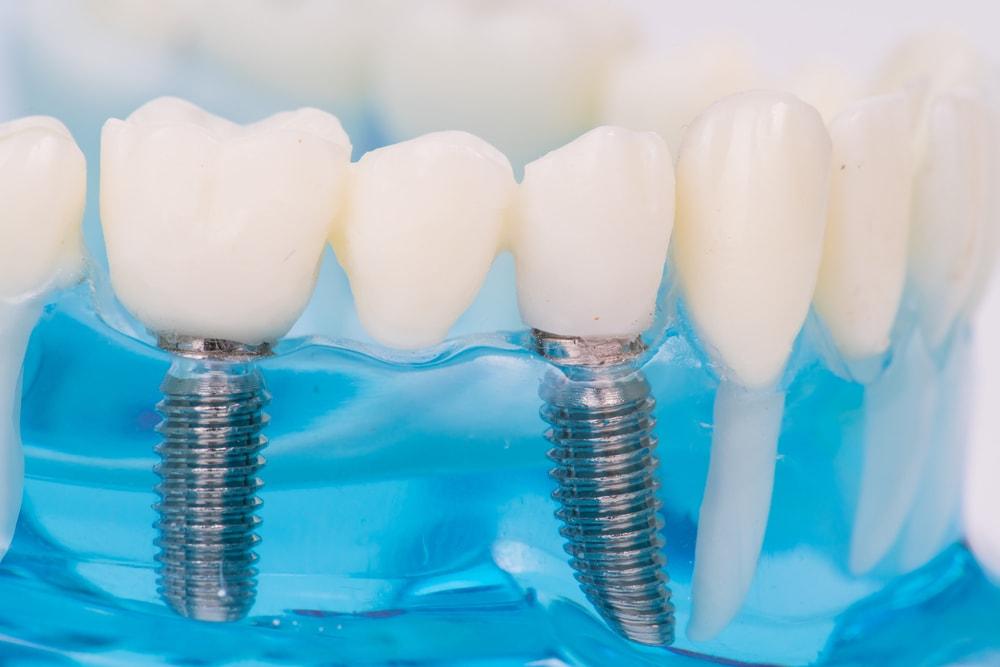 Profitez des avantages des implants dentaires