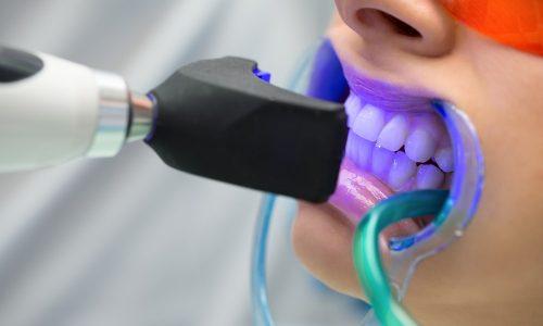 Il est important de choisit le blanchiment des dents professionnel