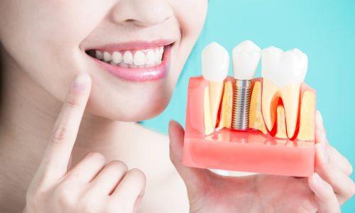 Les implants dentaires ont plusieurs avantages