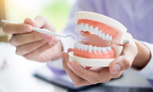 Une consultation de réhabilitation dentaire
