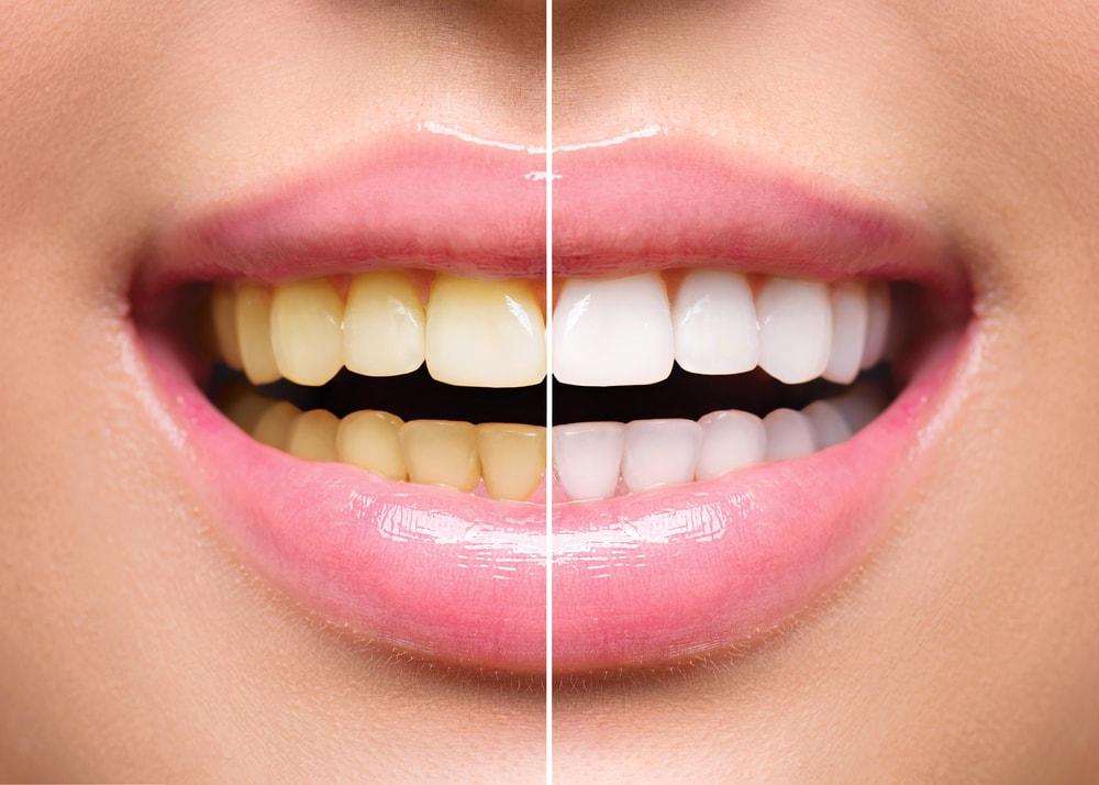 Des solutions existent au jaunissement des dents