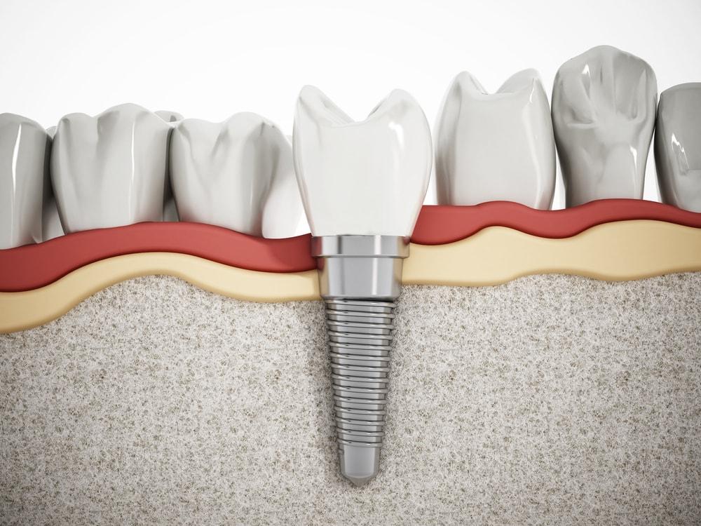 Les implants dentaires sont polyvalents