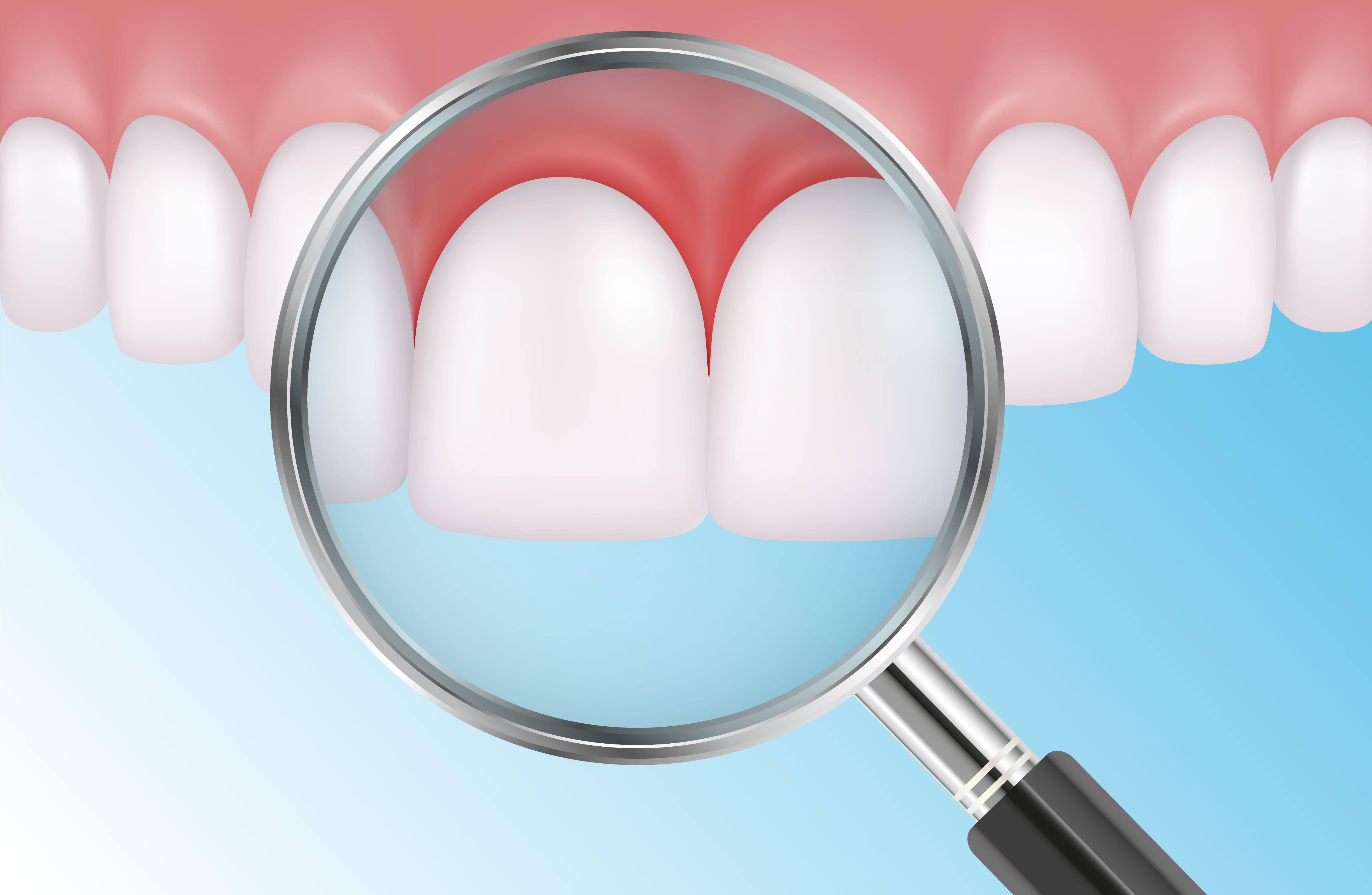 Les soins des gencives sont essentiels au maintien de la santé bucco-dentaire
