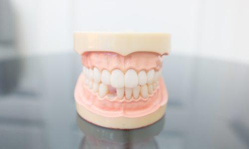 Un modèle de perte de dents chez les adultes