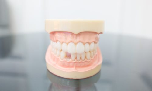 Model of tooth loss in adults