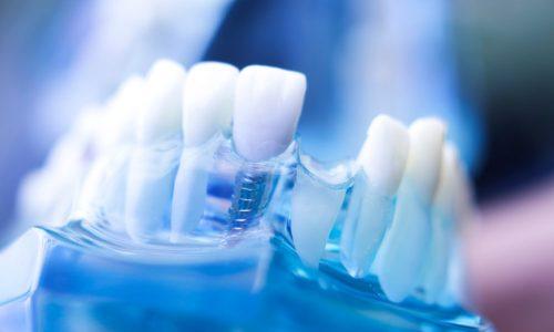 Un modèle dentaire avec des dents manquantes