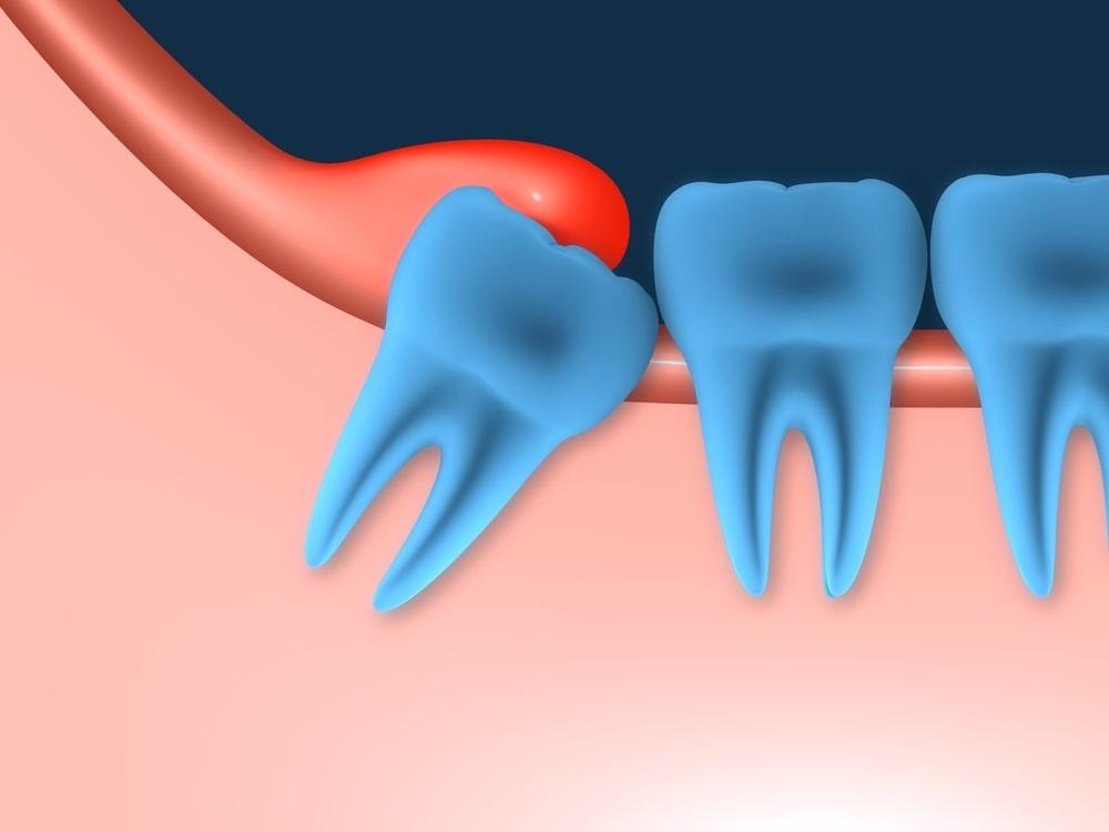 Une péricoronarite affecte une dent de sagesse